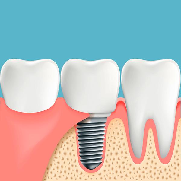 Clinicas Implantes Dentales en Madrid