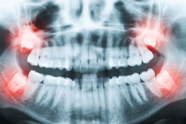 Implantes Dentales Cordales Muelas Juicio Madrid