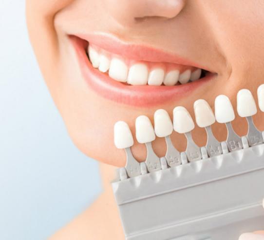 En que consiste blanqueamiento Dental