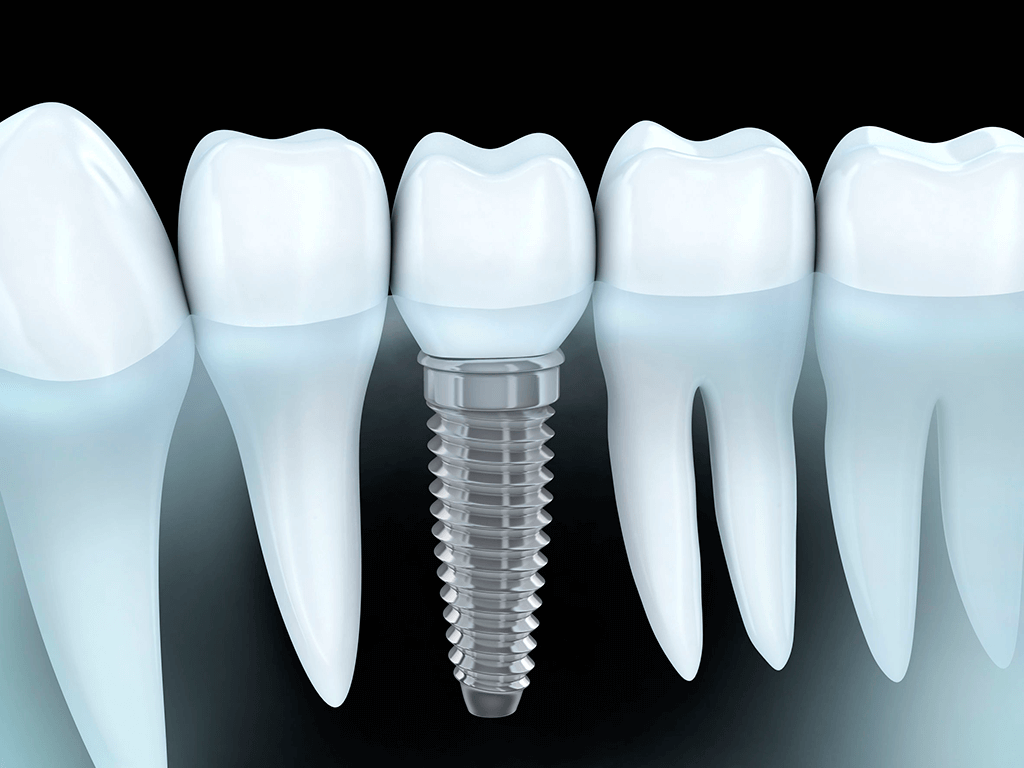 Especialistas Implantes Dentales Madrid