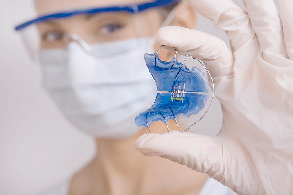 Estetica Dental Ortodoncia Lingual Madrid