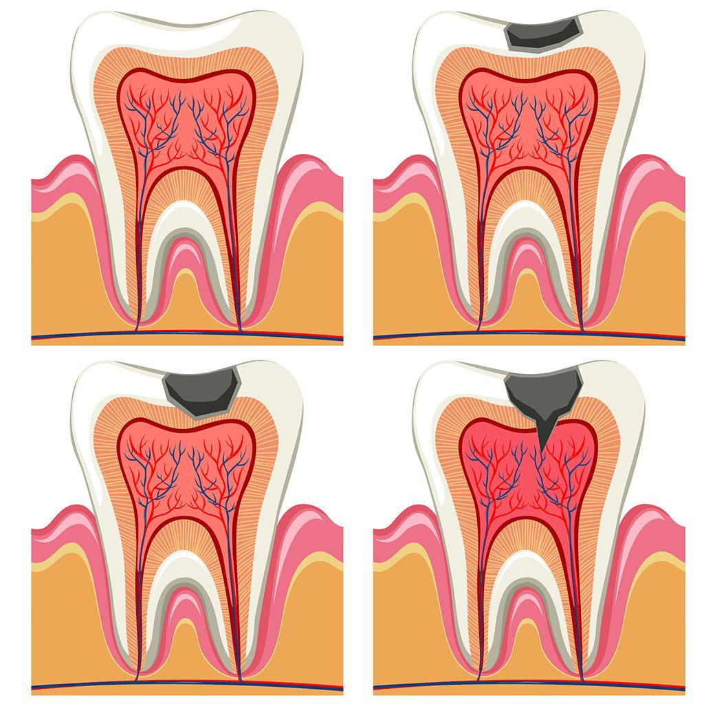 Odontología conservadora Endodoncia