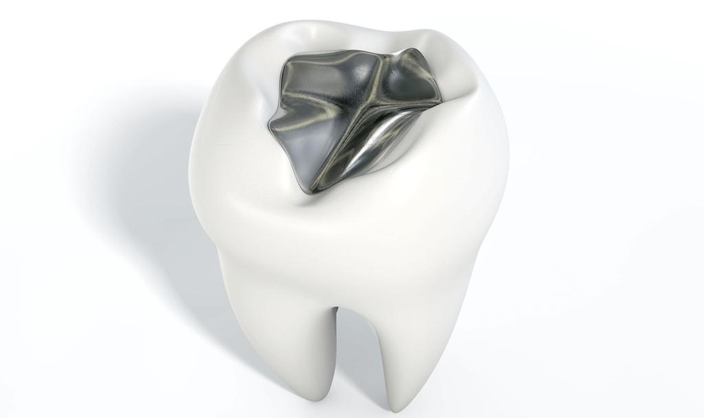 Odontología conservadora Obturación