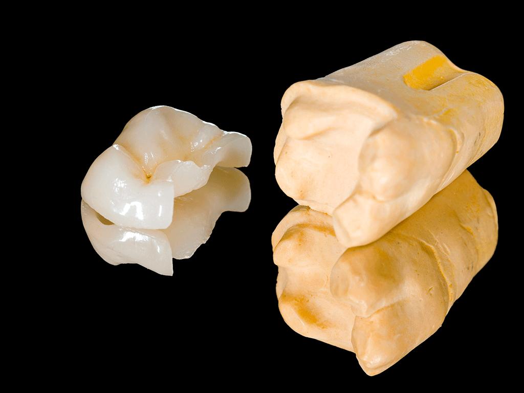 Odontologia conservadora Incrustación