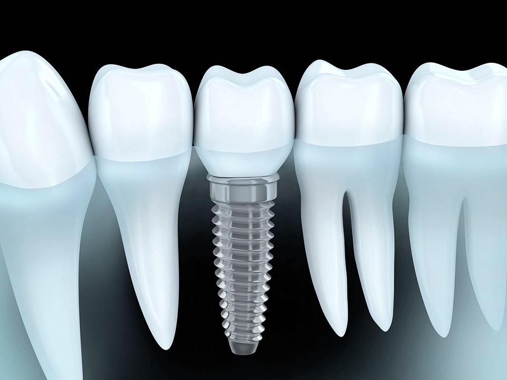Odontología Implantes dentales