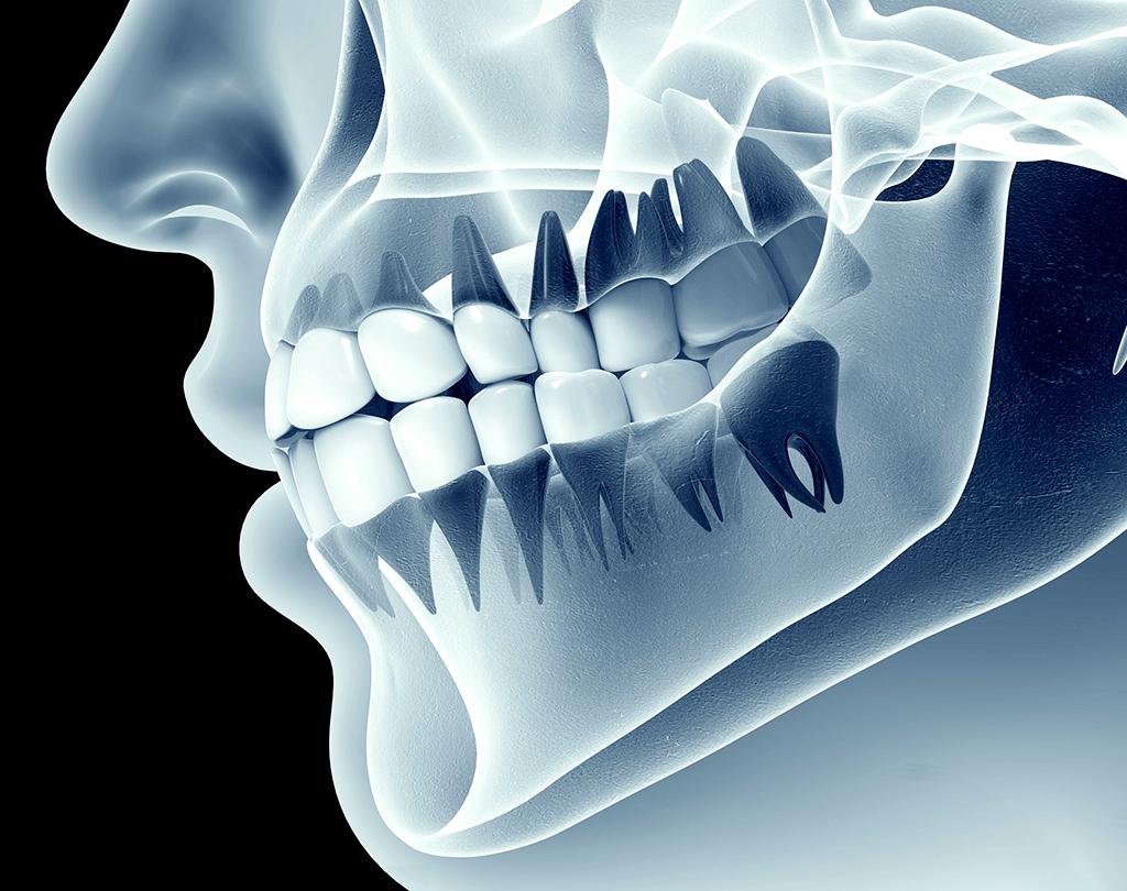 Odontología Rehabilitación integral Bruxismo