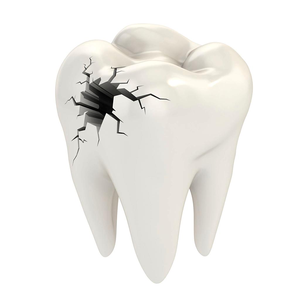 Odontologia Conservadora Estetica Madrid