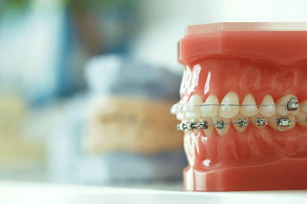 Ortodoncia Estetica Brakets Ceramicos Madrid