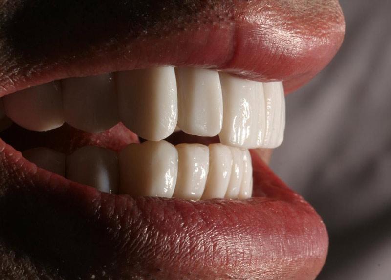 tratamiento antiaging dental rejuvenecimiento